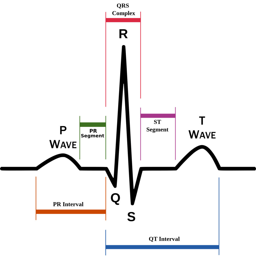 ECG Readout