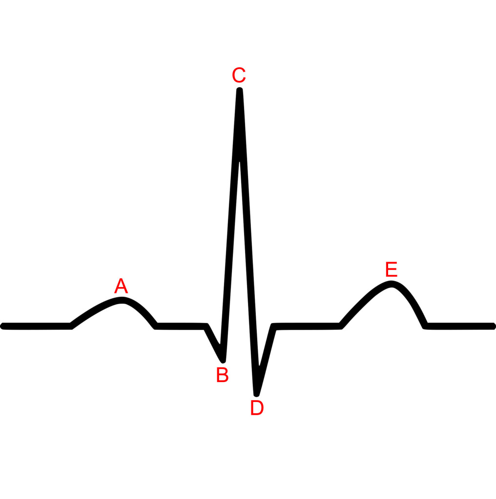 ECG Waves